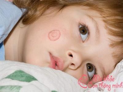 Tất tần tật các thông tin về bệnh lác đồng tiền ở trẻ em