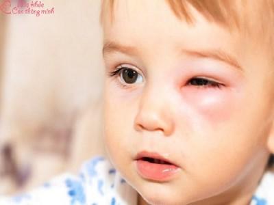 Nguyên nhân và cách điều trị bệnh viêm bờ mi mắt ở trẻ nhỏ