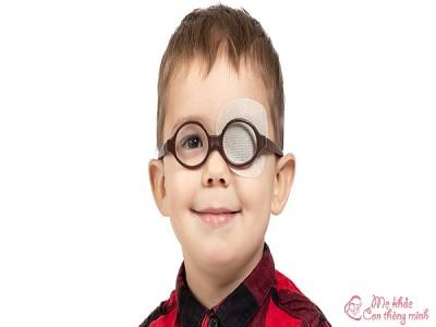 Nhược thị là gì? Biện pháp điều trị nhược thị an toàn, hiệu quả cho trẻ