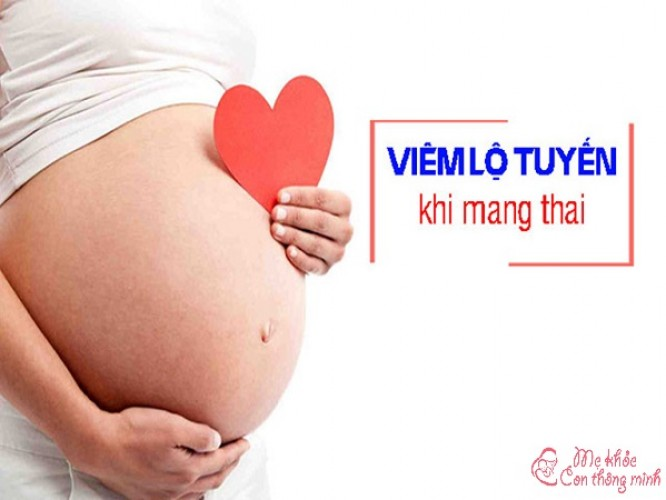 Viêm lộ tuyến khi mang thai có nguy hiểm không? Cần làm gì để nhanh khỏi bệnh?