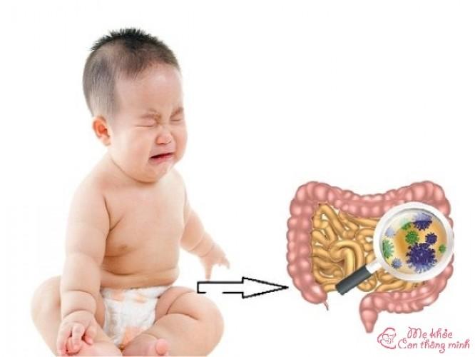 Những kiến thức không nên bỏ qua về bệnh viêm ruột ở trẻ em