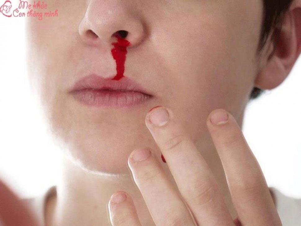 Bệnh máu trắng là gì? Bệnh máu trắng có sinh con được không?
