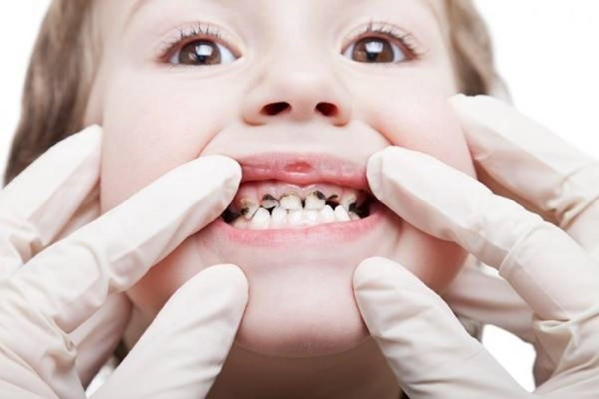 Tại Sao Trẻ Em Ăn Kẹo Lại Bị Sâu Răng?