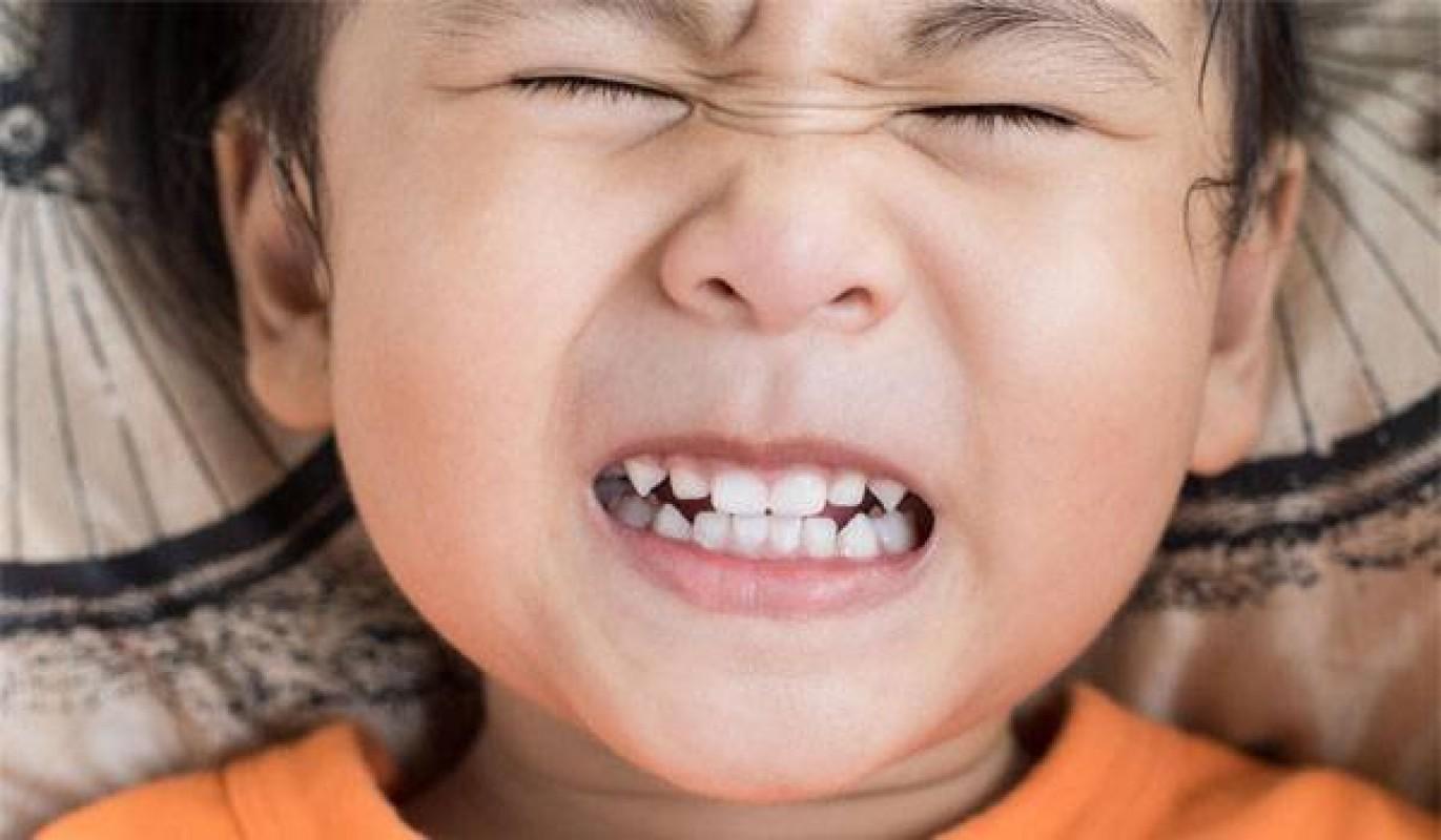 Vì Sao Trẻ Ngủ Nghiến Răng? Mẹo Chữa Nghiến Răng Khi Ngủ Hiệu Quả