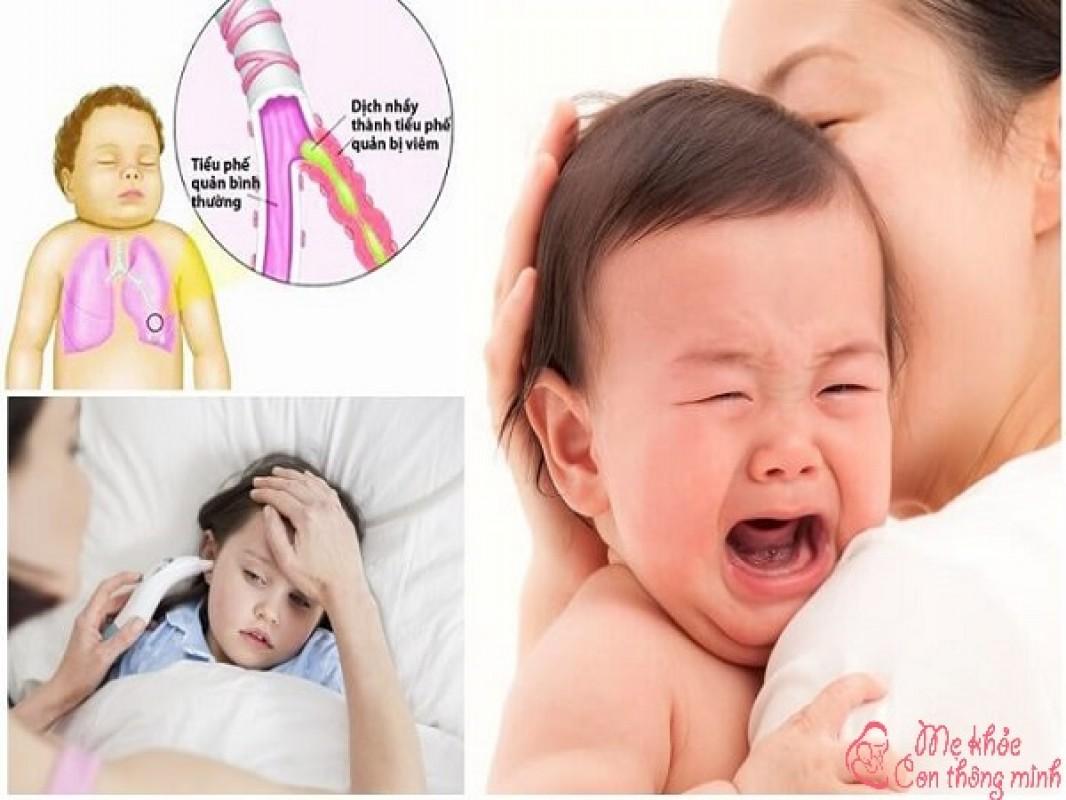Bí Quyết Chăm Sóc Trẻ Bị Viêm Phế Quản Để Bé Nhanh Khỏi Bệnh