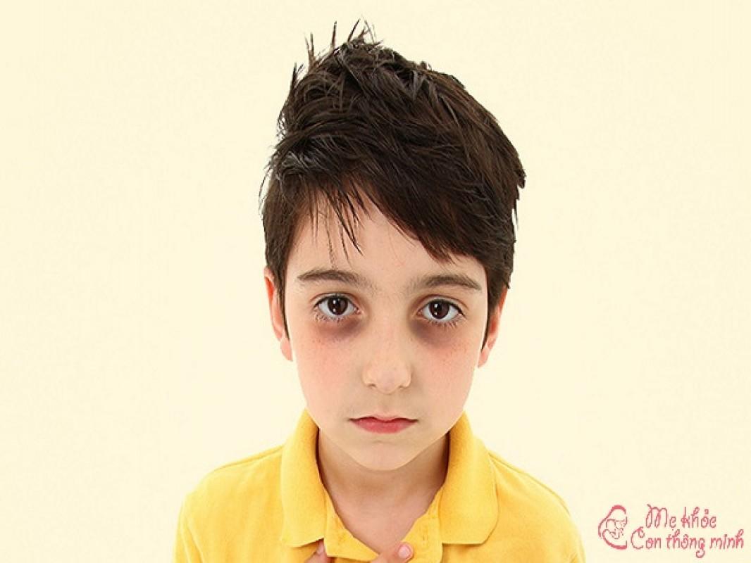 Lộ Diện 12 Nguyên Nhân Khiến Trẻ Em Bị Thâm Quầng Mắt