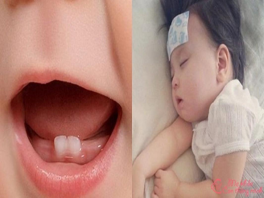 Top 5 Điều Ba Mẹ Cần Lưu Ý Khi Trẻ Sốt Mọc Răng